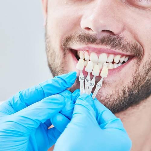 cosmetic dentistry cornerstone dental beaumont TX services veneers image